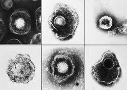 250px-Herpesviridae_EM_PHIL_2171_lores
